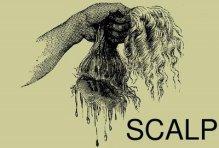 scalp2.jpg